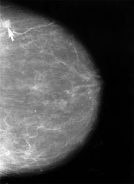 Mammogram_showing_breast_cancer.jpg
